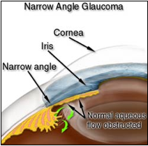 Narrow Angle Glaucoma Diagram