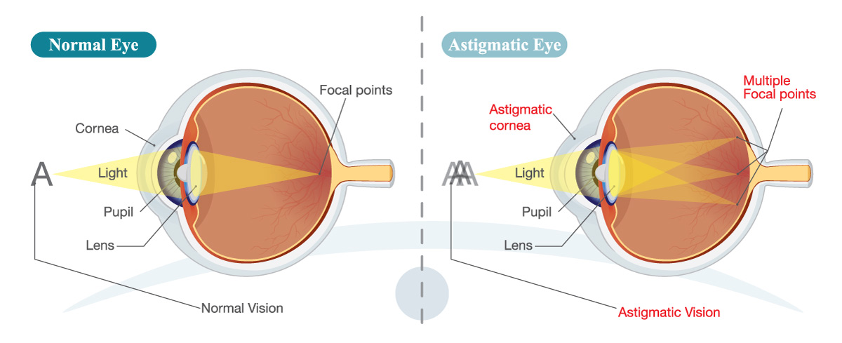 Astigmatism Illustration - Treatment at Coastal Eye Care Ellsworth Maine