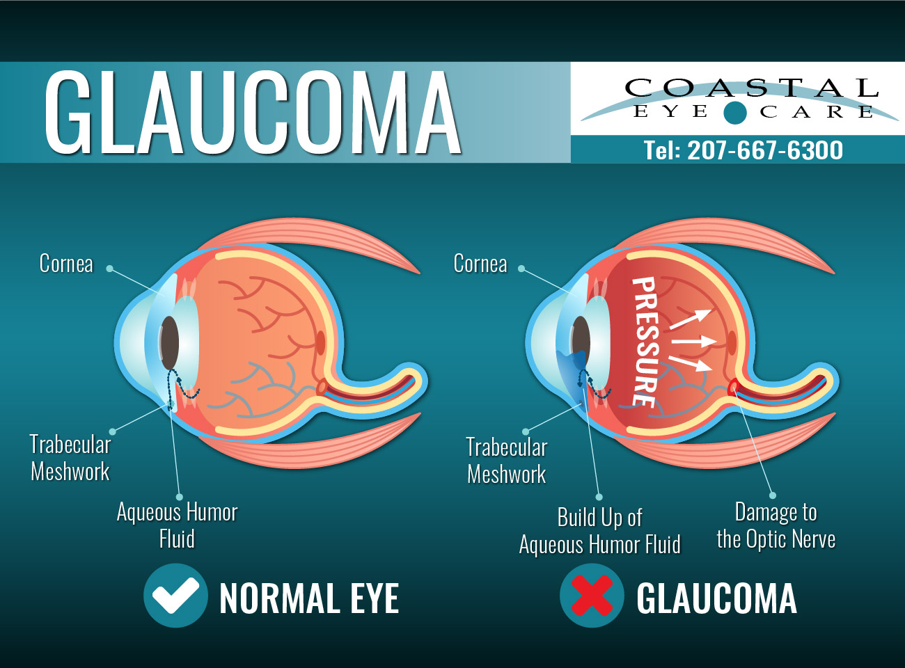 glaucoma illustration - treatment at Coastal Eye Care - Ellsworth Maine